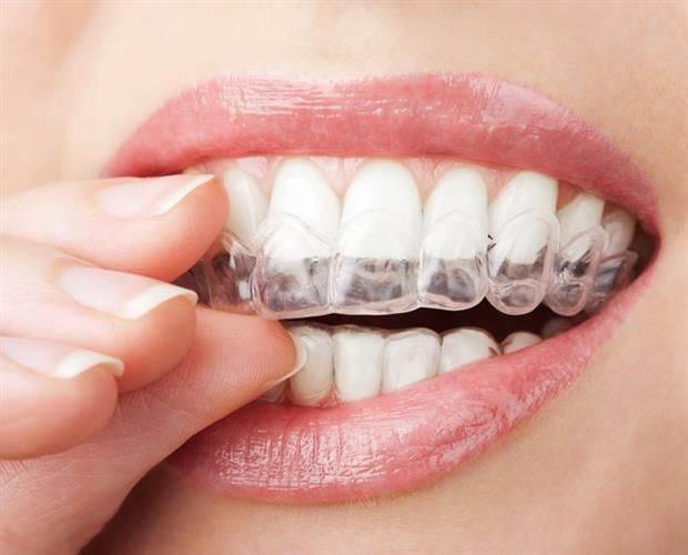 ISO chránič proti škrípanie zubov3